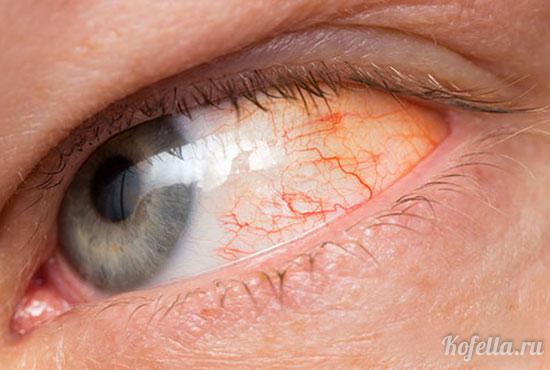 аллергия на сухой корм у человека
